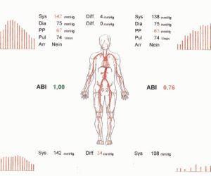 ABI-Messung
